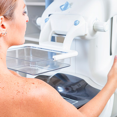 Mamografia em Natal/RN
